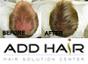 แอดแฮร์ แฮร์โซลูชั่น เซ็นเตอร์ ( ADD HAIR HAIR SOLUTION CENTER )